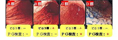 image-pirori-abc1.jpg